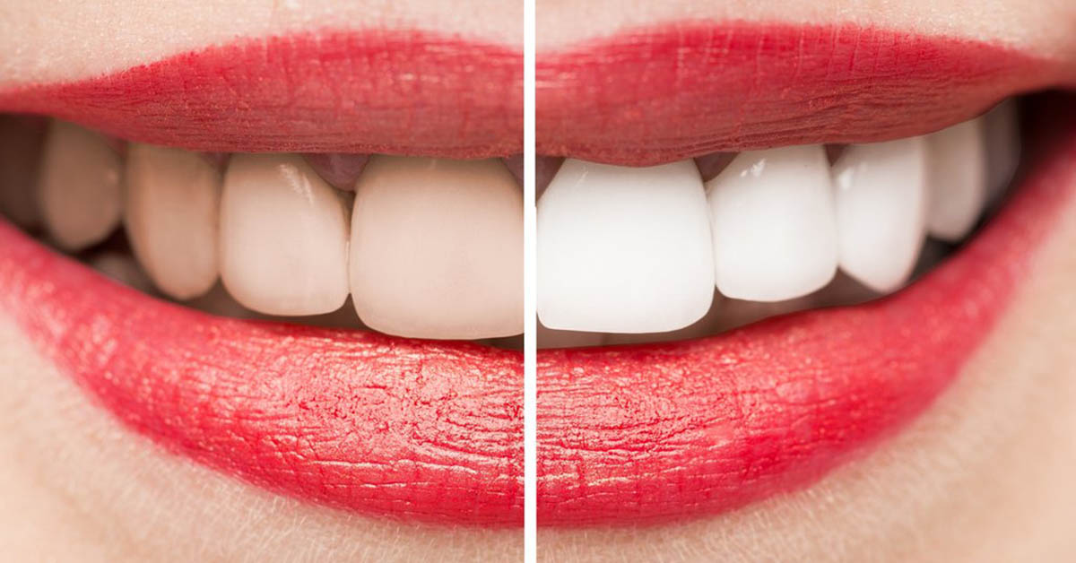 Before and After teeth whitening in Colne, near Burnley in Lancashire.